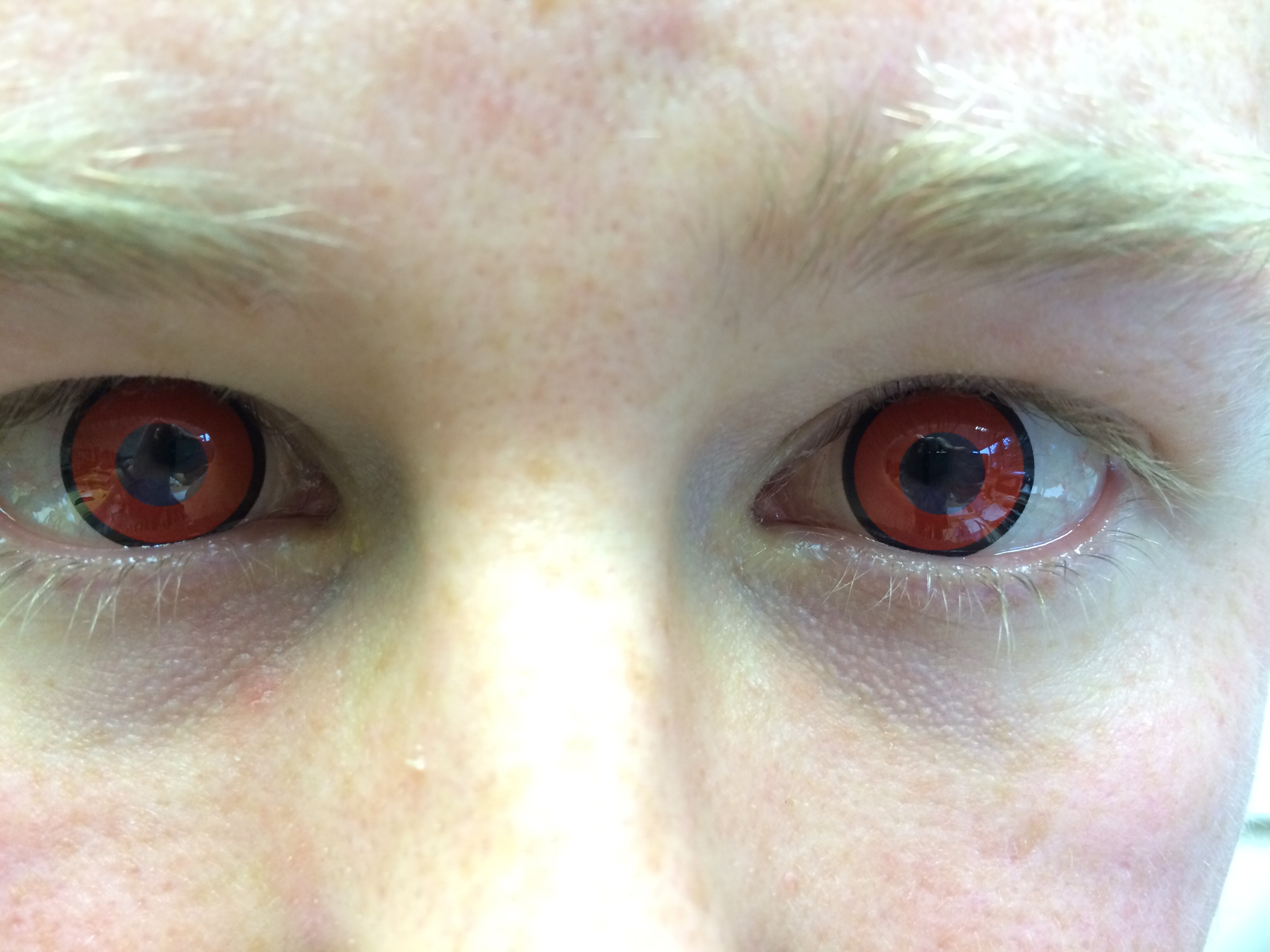 Natural Help For Yellow Eyes